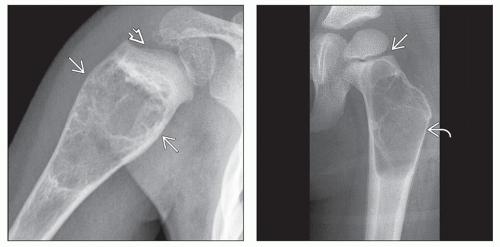 солитарна костна киста